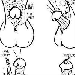为什么会出现尿道畸形