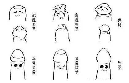 男性患有包茎的症状表现