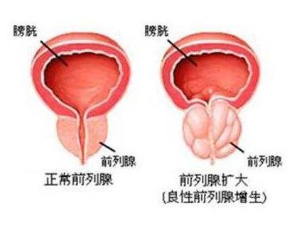 前列腺增生并发症有哪些